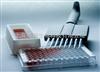 人過氧化脂質/乳過氧化物酶(LPO)ELISA試劑盒