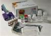 人谷氨酸脫羧酶(GAD)ELISA試劑盒