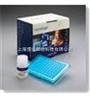 裸鼠蛋白磷酸酶,裸鼠蛋白磷酸酶試劑盒